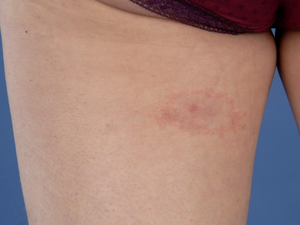 The characteristic bullseye rash for Lyme disease | Innatoss