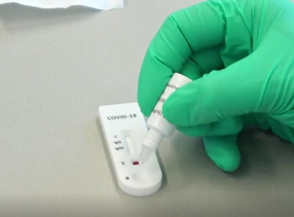 Uitvoering antistoffentest